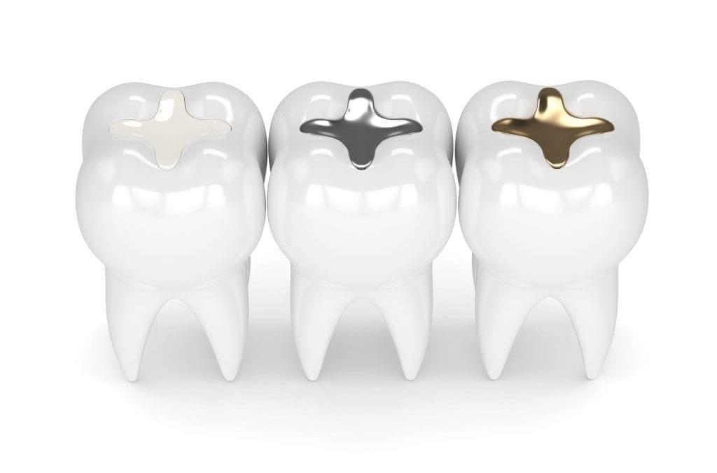 Recommendations for Certain High-Risk Groups Regarding Mercury-Containing Dental Amalgam